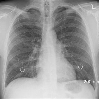 Pneumologische Leistungen